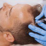 Quand envisager de faire une greffe de cheveux?