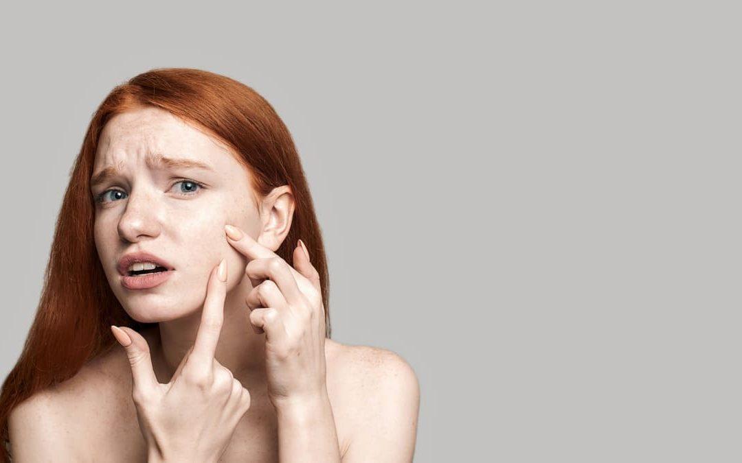 masque et acné