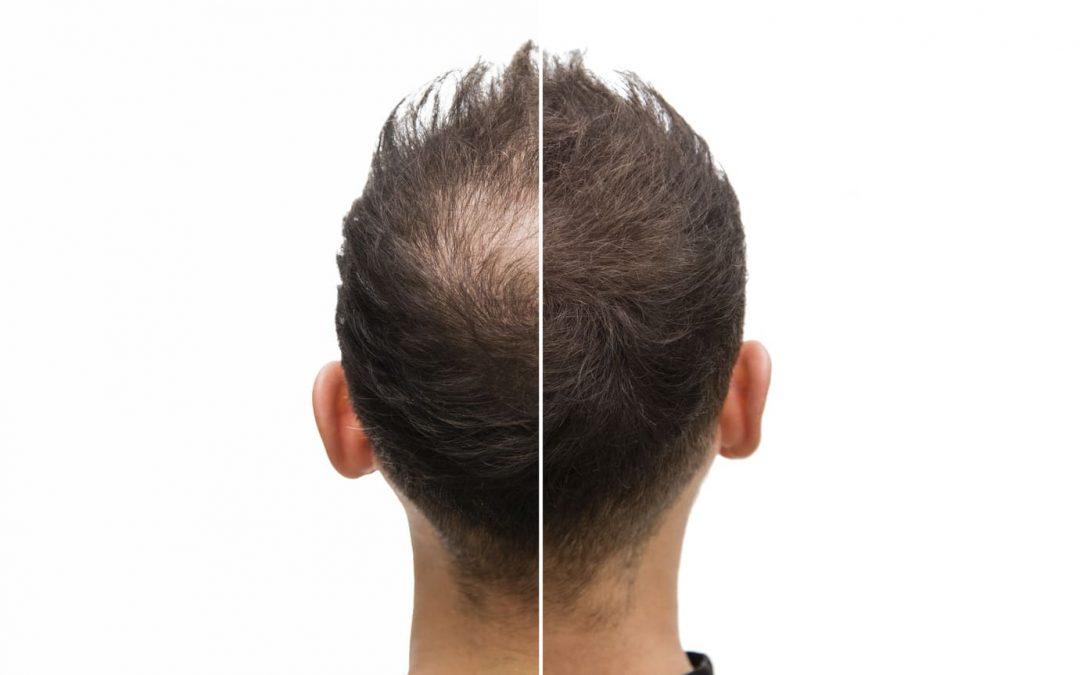 Peut-on corriger une alopécie sévère ?